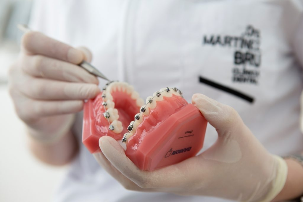 Ortodoncia Rápida y Eficaz - Sistema Damon