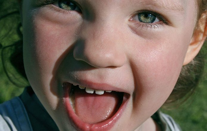 Dentista infantil en Elche