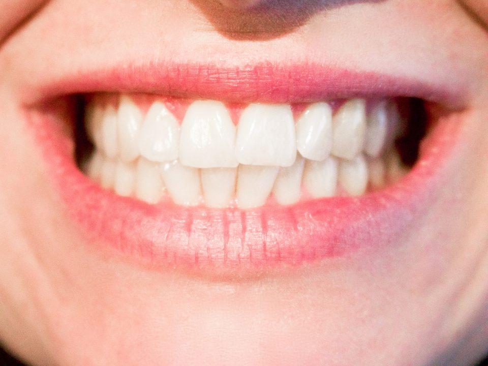 Una sonrisa blanca y perfecta