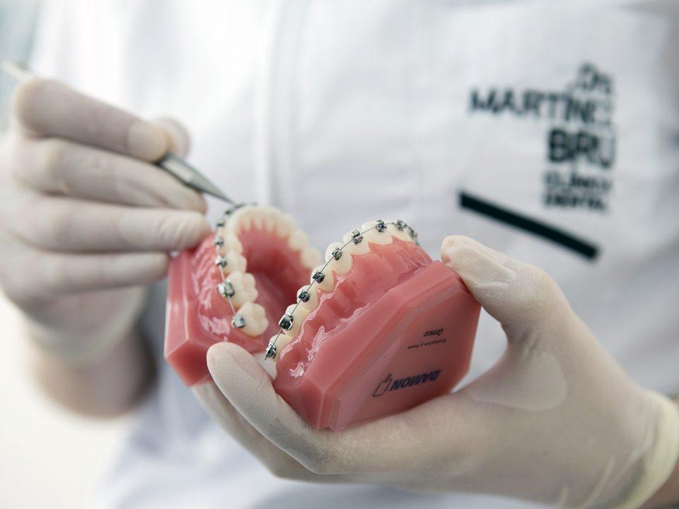 Aparato dental de ortodoncia Damon