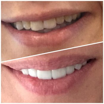 Antes y después de carillas dentales