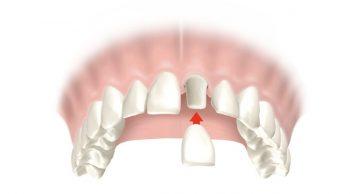 Corona dental en Elche