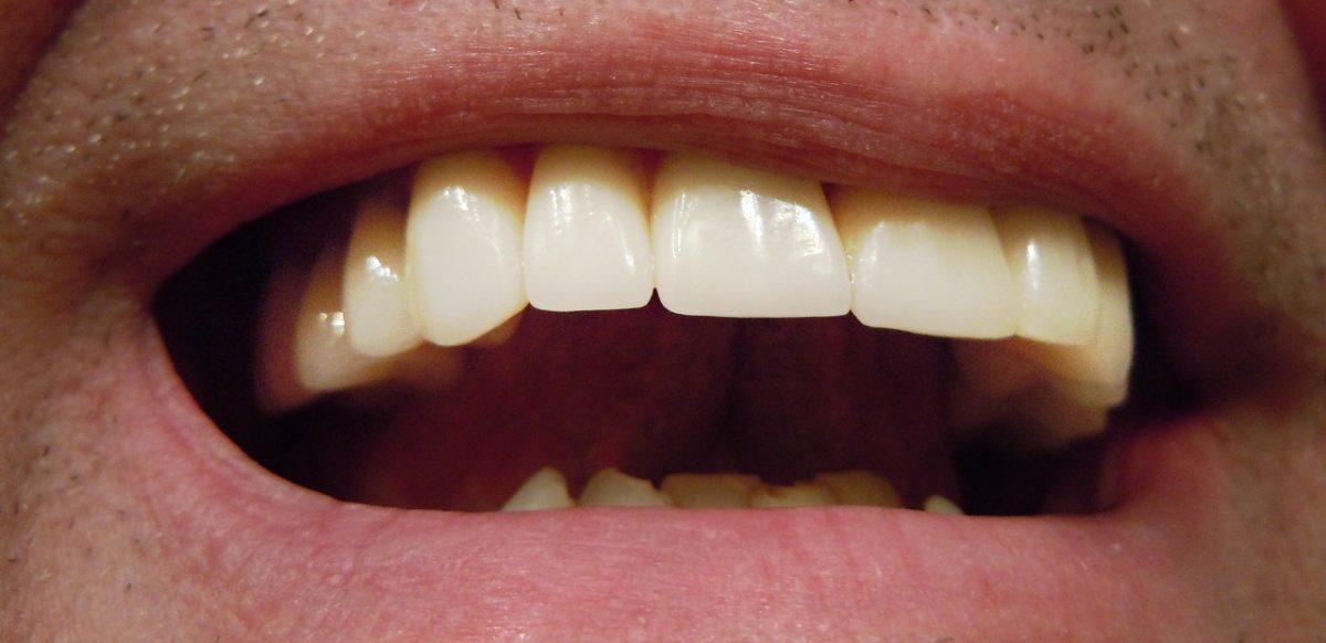 Coronas o fundas para dientes