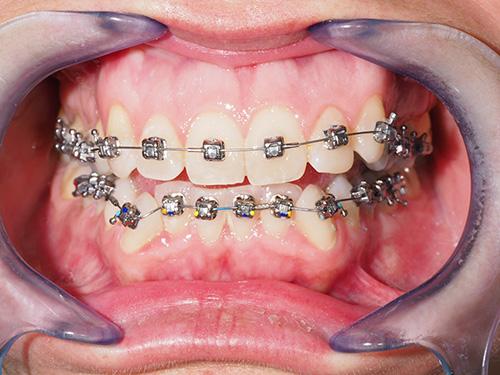 Ortodoncia Damon en Paciente