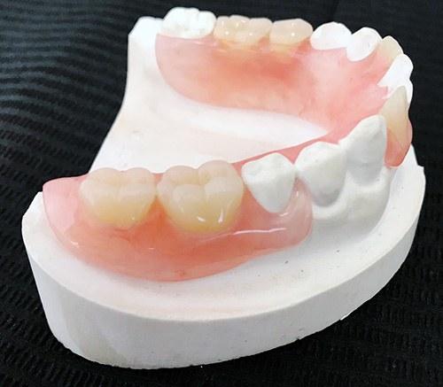 Adaptación Prótesis dental Elche